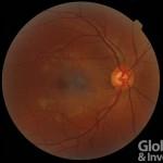 20170209-視網膜