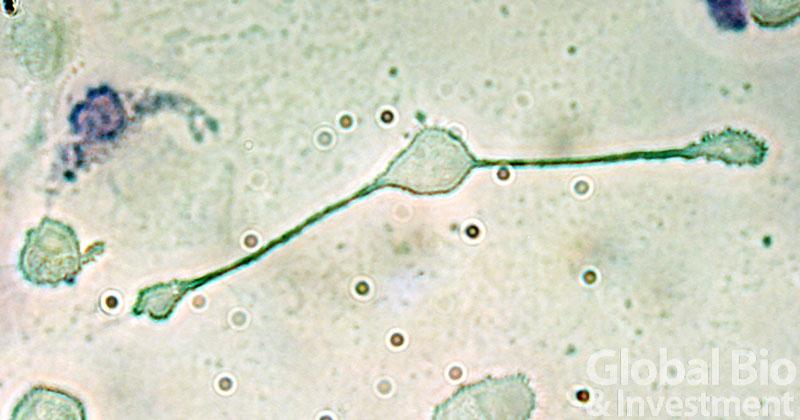 巨噬細胞竟是卵巢癌轉移幫凶! 新免疫療法有望?(圖片來源:網路)