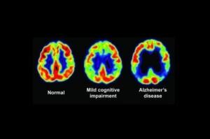 正常與阿茲海默症,腦部掃描圖。