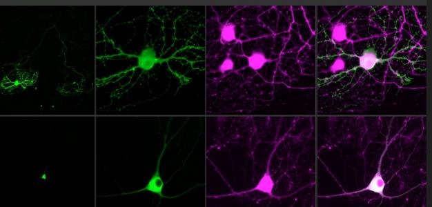 神經斷裂1公分也能修復! 南京大學開發軟性電子神經修復水凝膠 (圖片來源:網路)