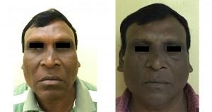 手術前與手術後對比(圖片來源:國泰醫院)