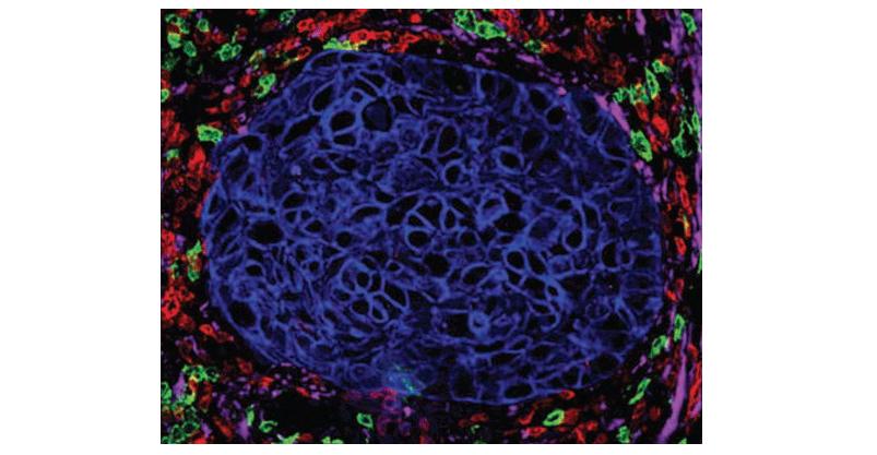 研究證實,腫瘤微環境當中的成分影響PD-L1治療效率。(圖/翻攝自網路)