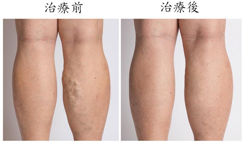 靜脈曲張透過微創血管內射頻或雷射手術治療前後差異(圖片來源:長庚醫院)