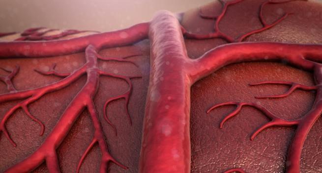 周邊動脈疾病治療落差大! 大型研究建議增加他汀類藥物處方 (圖片來源:網路)