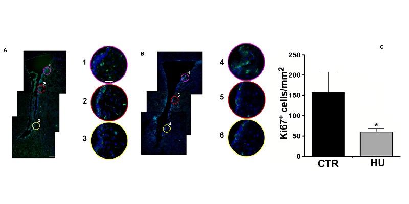A:為對照組B:為HU組C:為ki67數據化 (Ki67表現綠螢光) 資料來源:Frontiers in Neuroscience