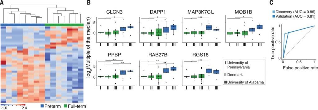 cfRNA測量來預測自發性早產風險