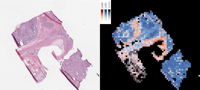利用AI分辨出兩種肺癌類型,紅色鱗狀細胞癌,藍色肺鱗狀細胞癌和灰色正常肺組織。(圖片來源:NYU School of Medicine)