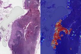 Google AI 再下一城 乳癌圖像辨識準確率達99%。(圖片來源:Gigazine)