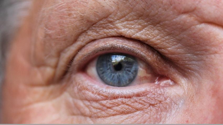 從「眼睛」預測心血管疾病!? 研究證實視網膜血管變化與血壓關聯 (圖片來源:網路)