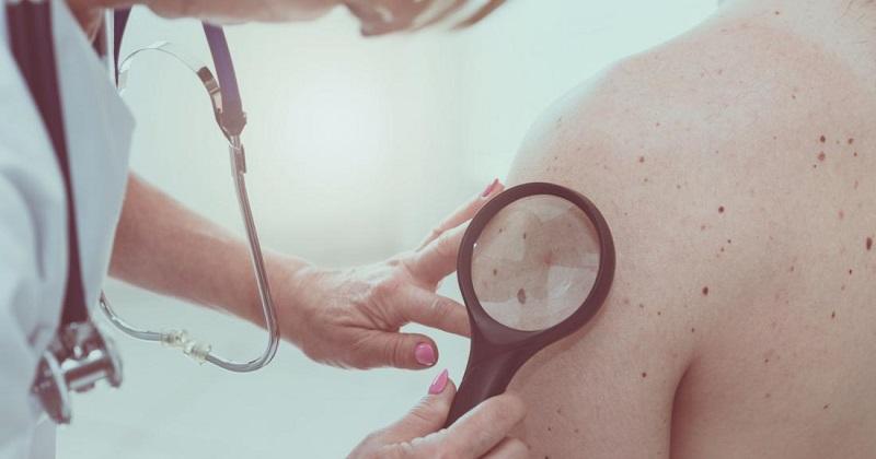 《Nature》子刊:比腫瘤突變負荷更準! 研究發現全新免疫治療預測因子 (圖片來源:網路)