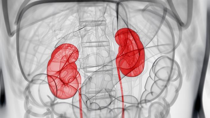 英國AI腎臟疾病檢測公司IPO達2900萬美元 (圖片來源: 網路)