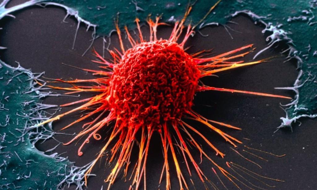 美國癌症發病率25年 下降27%。 (圖片來源: 網路)
