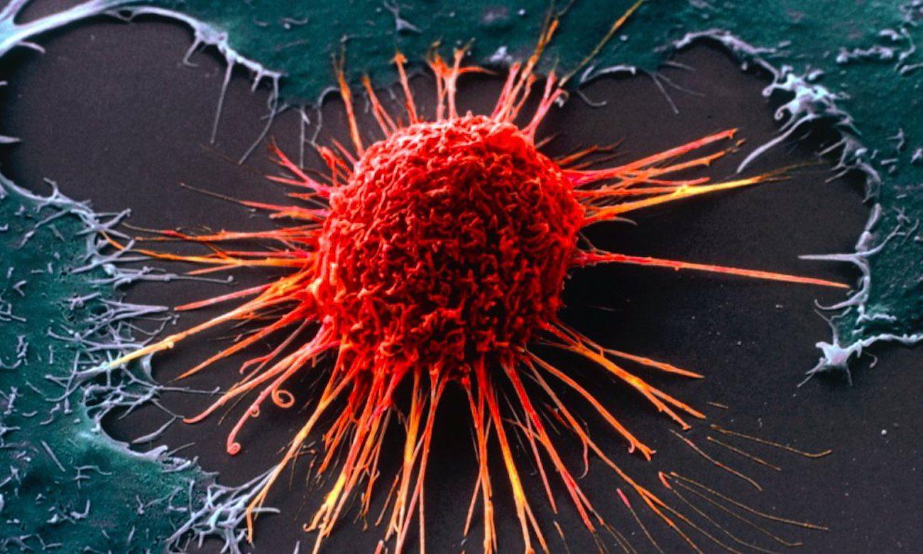 蛋白質的邪惡雙胞胎與腫瘤發展 (圖片來源: 網路)