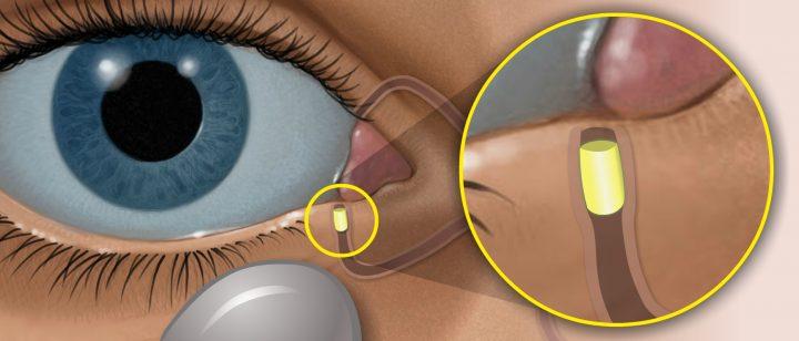 Ocular青光眼插入藥物 三期試驗未達試驗終點。(圖片來源:Ocular Therapeutix)