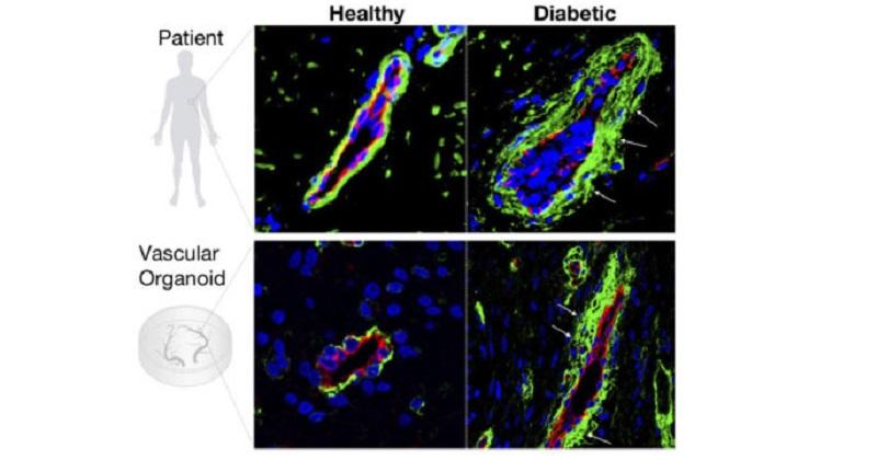 《Nature》首次成功培育類血管系統 有望造福糖尿病血管病變患者(圖片來源:nature)