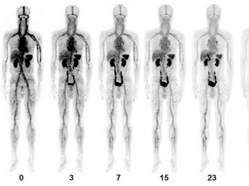 《JNM》韓國開發出新的PET-CT顯影劑 以提升急性靜脈血栓確診率。(圖片來源:網路)