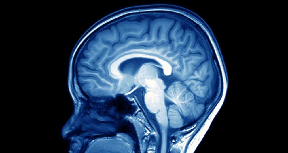 又一個阿茲海默症新藥掉入黑洞  Biogen、Eisai三期試驗喊停。(圖片來源:網路)