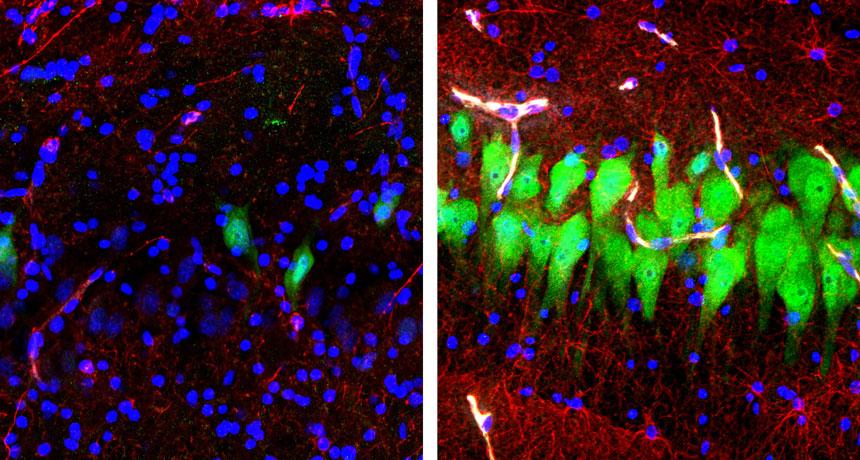 未經BrainEx處理的豬腦(左)與經過BrainEx培養的豬腦(右)在10個小時後表現出截然不同的細胞活性 (圖片來源: sciencenews)