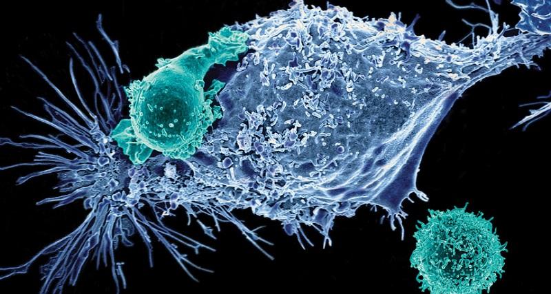 Poseida前列腺癌CAR-T臨床試驗驚傳死亡遭FDA叫停 股價跌20% (圖片來源:網路)