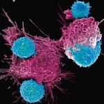 賓大研究:癌細胞凋亡訊號路徑是使CAR-T細胞療法失效關鍵。(圖片來源:網路)