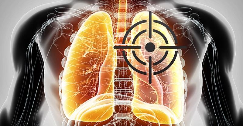 默克、Incyte/諾華 在C-Met非小細胞肺癌的爭奪戰。(圖片來源:網路)
