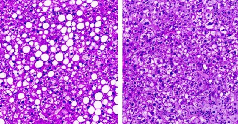 肥胖小鼠的脂肪肝(左)。 通過二氫神經醯胺脫氫酶1(DES1)降低神經醯胺的小鼠肝臟(右),DES1可用於開發抗糖尿病的藥物。(圖片來源:Science)