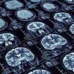 禮來/羅氏 2款早發型阿茲海默症抗體藥 晚期試驗未達終點。(圖片來源:網路)