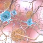 歐洲研究破解Aβ蛋白3D結構有望成治療阿茲海默症新方(圖片來源:網路)