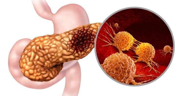 美國研究發現抑制胰臟癌轉移關鍵蛋白(圖片來源:網路)