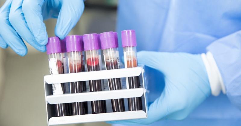《American Medical Association》:p-tau217血液檢測法 提前20年偵測阿茲海默症。(圖片取自網路)