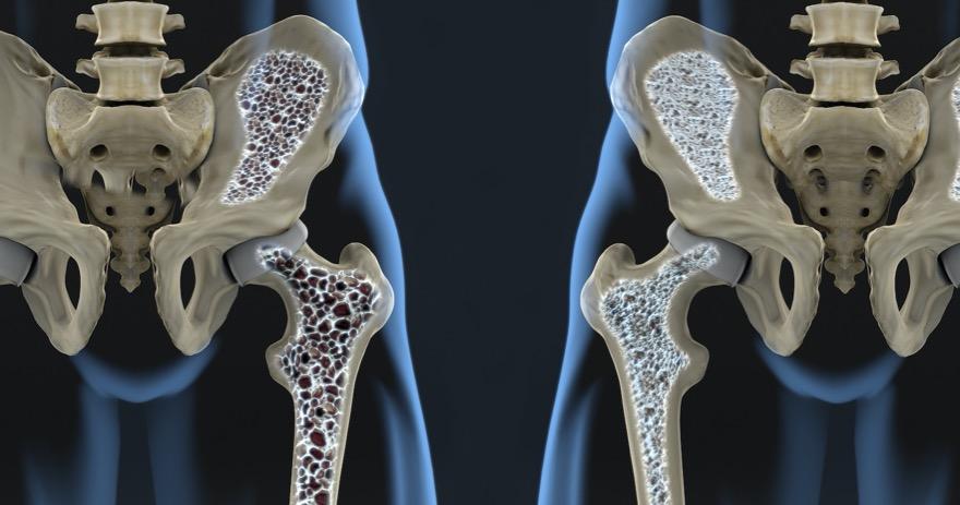 《Scientific Reports》:催產素可預防更年期骨質疏鬆。(圖片來自網路)