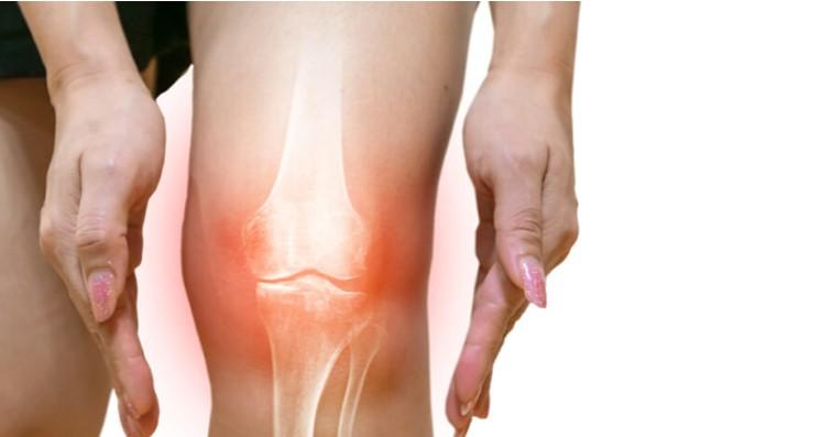 抗衰老新藥公司Unity膝關節骨關節炎二期臨床失敗 ,將裁員30%。(圖片取自網絡)